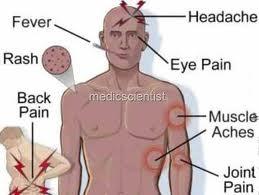 Typhoid explained
